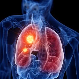 image segmentectomie pulmonaire